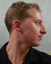 A side profile of the face